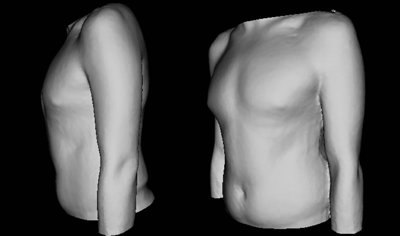Dị tật xương ức gà ( ngực lồi)