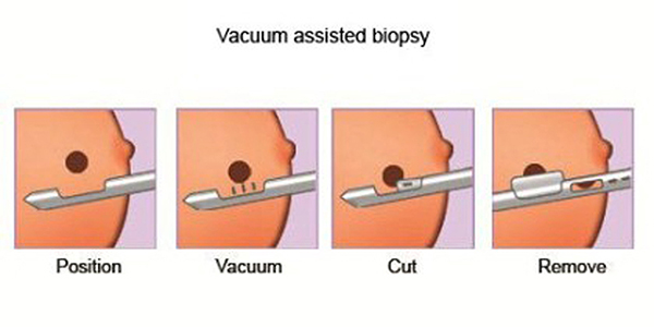 Vacuum Assisted Biopsy 420x210