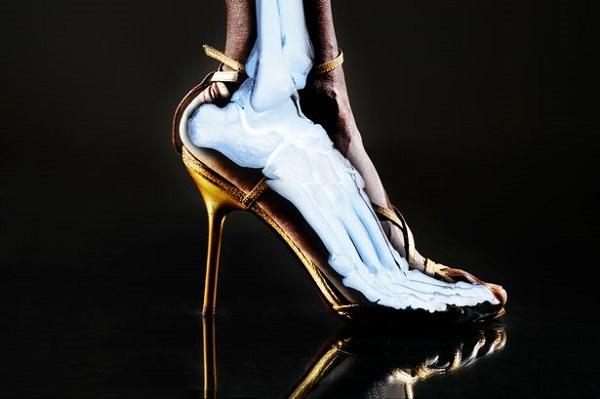 H 3 Mang giày cao gót lâu ngày có nguy cơ gây dị dạng bàn chân